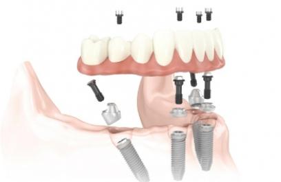 El futuro de los implantes humanos