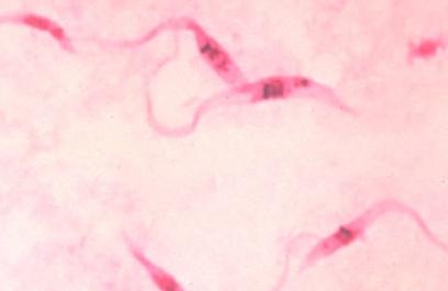 Ultrasonido para diagnóstico de enfermedad de Chagas