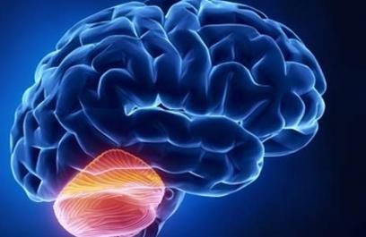 Estudian función del cerebelo en Parkinson