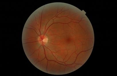 Descubren el nacimiento de la visión, desde la retina hasta el cerebro