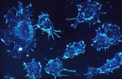 Hallan una molécula causante de expandir las células tumorales