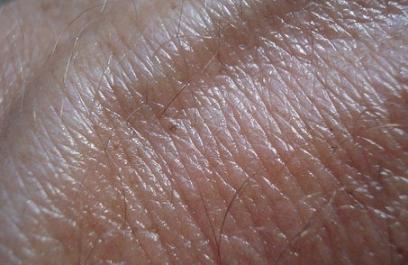 Crean una tirita con restos de lana desechados que regenera células de la piel